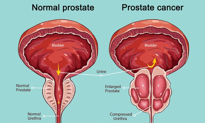 Show prostatitis A prosztatitis kezelés kiszámítása